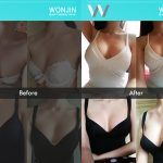 breast-surgery-real-story-01