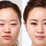 korean_plastic_surgery_by_ttongsul-d6pafzl
